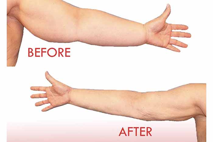 NOW OPEN: Lymphedema Clinic